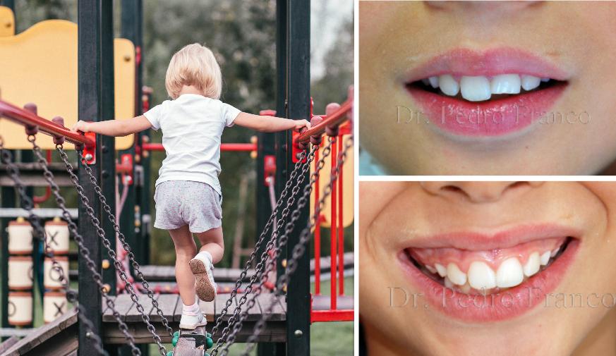 Traumatismos Dentários