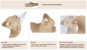 exame prevenção cancro da mama